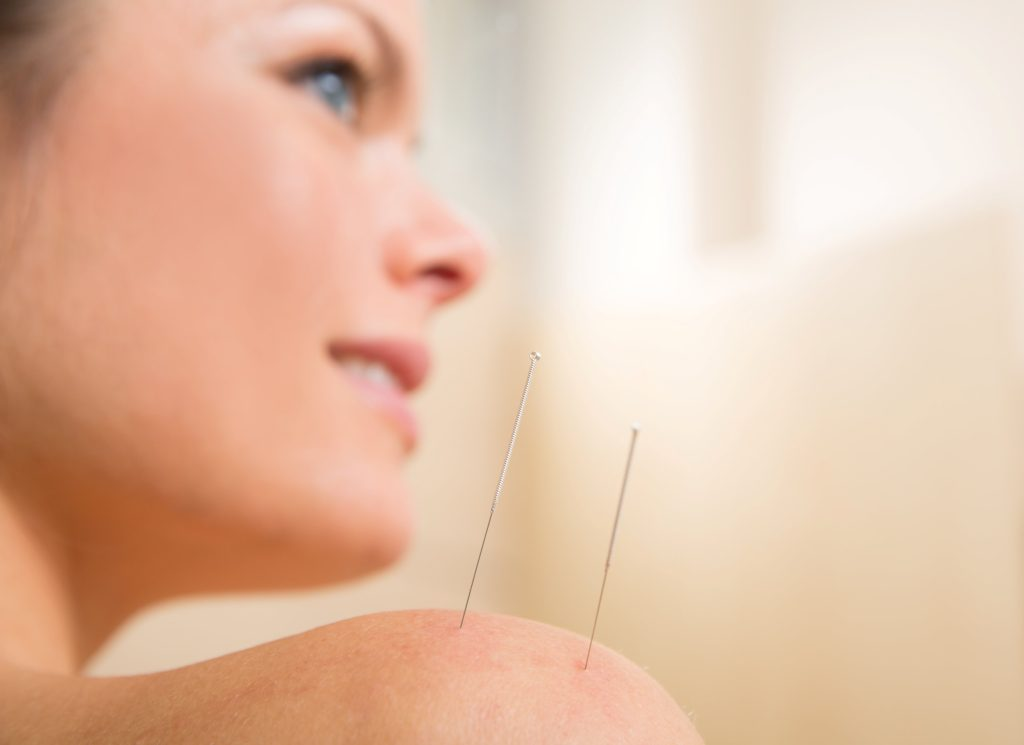 acupuncture for addiction treatment, boca raton, addiction help